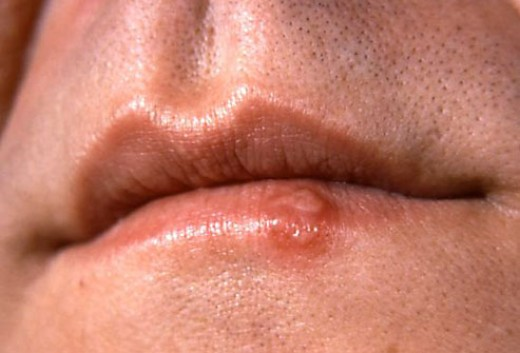 Cold sore shown on the lip of an unknown individual, public domain.