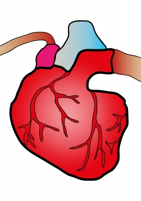 High LDL Cholesterol Causes Heart Diseases