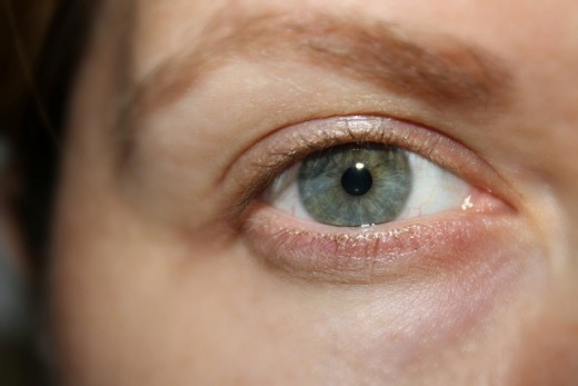 Thinning skin and dark circles in the eye area.