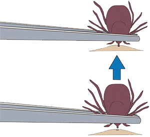 The best way to accomplish removal is to grab the mouth part - not the body- where it enters the skin, with a pair of fine tipped tweezers and pull firmly and repeatedly until the tick releases its hold.