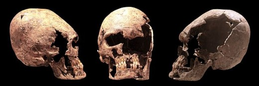 Elongated skull of a young woman.