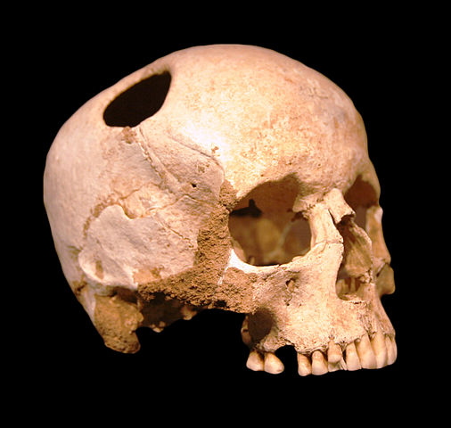 Trepanated skull of a girl from the Neolitic Period (approx 3500 B.C.). Bony ingrowth around the hole shows that she survived the operation.