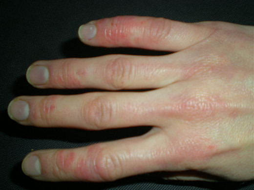 Raynauds syndrome occurs when circulation to the small capillaries occurs. Generally affects the extremities of the body such as hands and feet.