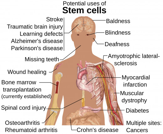should stem cell research continue View notes - stemcell-2 from english english at spanish river community high school 1 should stem cell research continue to be funded stem cell research.