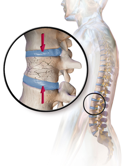 Compression Fracture Due to Osteoporosis