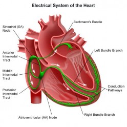 What are Cardiac Arrhythmia's?