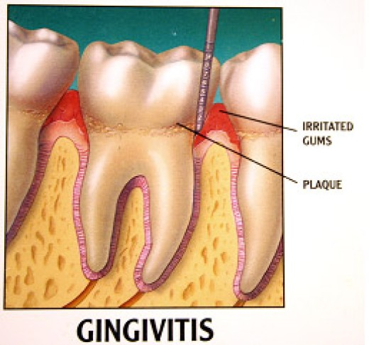 what does gingivitis look like?