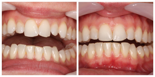 Before and After with Cheek Retractor