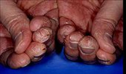 Dry, Scaly Skin Of Thumb