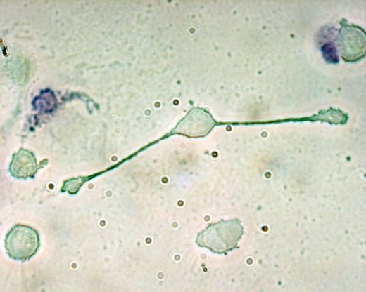 A mouse macrophage extending processes to  phagocytize particles.