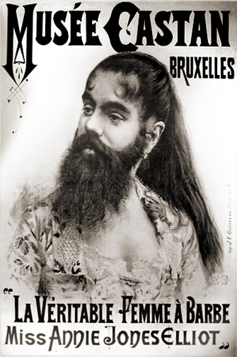 """""""Annie Jones"""" by Unknown - Poster. Licensed under Public domain via Wikimedia Commons  Annie Jones suffered from the genetic condition hypertrichosis, as did other circus Bearded Ladies. This did not stop them marrying and leading normal lives."""