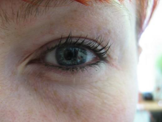 wrinkled and sun-damaged skin