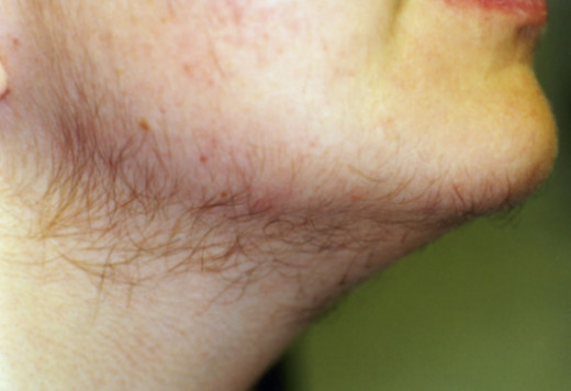 abnormal hair growth on chin area
