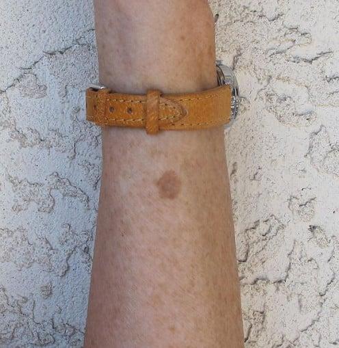 Liver spot on left forearm