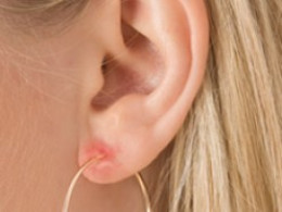 Women with Metal Allergie on ear