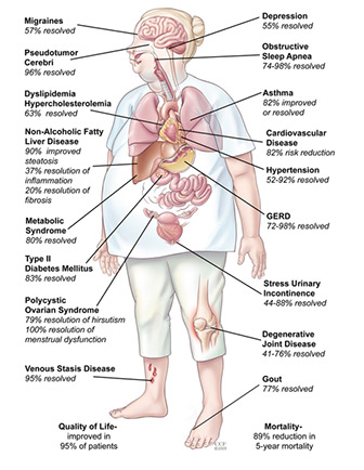Colorful Diagram Outlining Various Physical Problems Arising from Obesity