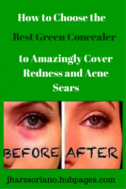 How to Choose the Best Green Concealer to Amazingly Cover Redness and Acne Scars