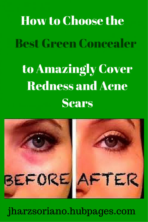 Green concealers do wonders in hiding your dark circles and redness.
