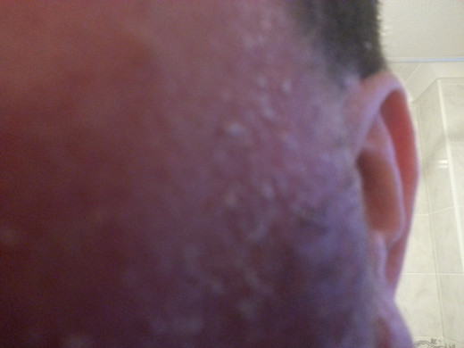 The dried skin always seems to be worse around areas of facial hair