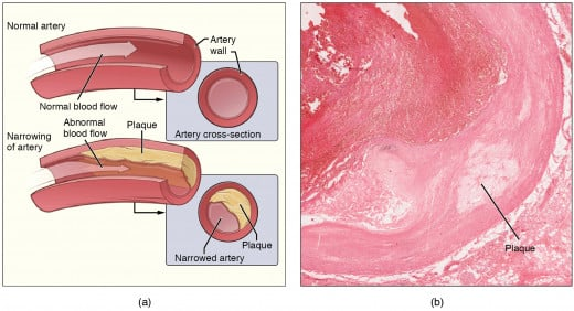 Images showing normal artery on left top,plaque formation on right side image and narrowing of arteries on left bottom.