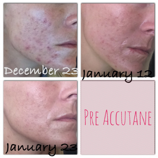 Accutane Side Effects Skin | 2017 - 2018 Best Cars Reviews