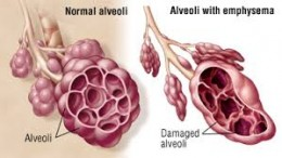Alveoli in the lungs, normal and damaged