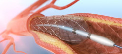 Angioplasty Surgery, Recovery and Lifestyle Changes