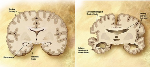 Normal brain and brain of Alzheimer's patients