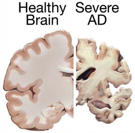 A drawing of a healthy brain compared with that of one afflicted with advanced Alzheimer's Disease.