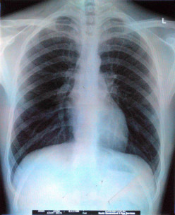 Radiation Pneumonitis - Symptoms,  Treatment and Recovery