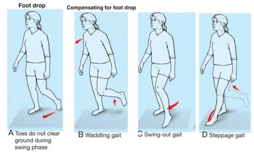Living with Foot Drop | hubpages