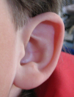 How to Safely Remove Earwax