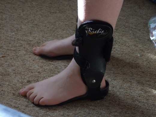 Your doctor may recommend that you wear a brace to protect your ankle until it is completely healed.