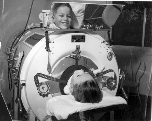 Child in an iron lung for polio -1950s