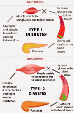 Differences Between Type 1 & Type 2 Diabetes