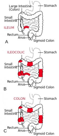 Crohn's Disease - Signs And Symptoms