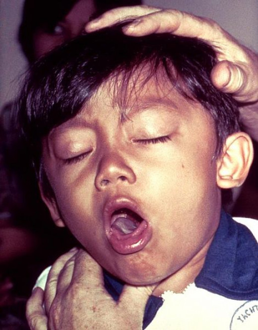 A child with whooping cough. What a terrifying sound!