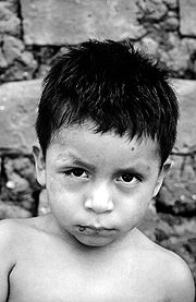 """This poor youngster has been infected with Trypanosomiasis (Chagas) by the Assassin, or Kissing Bug.  His face shows the classic, """"Romana's Sign"""" a swelling."""