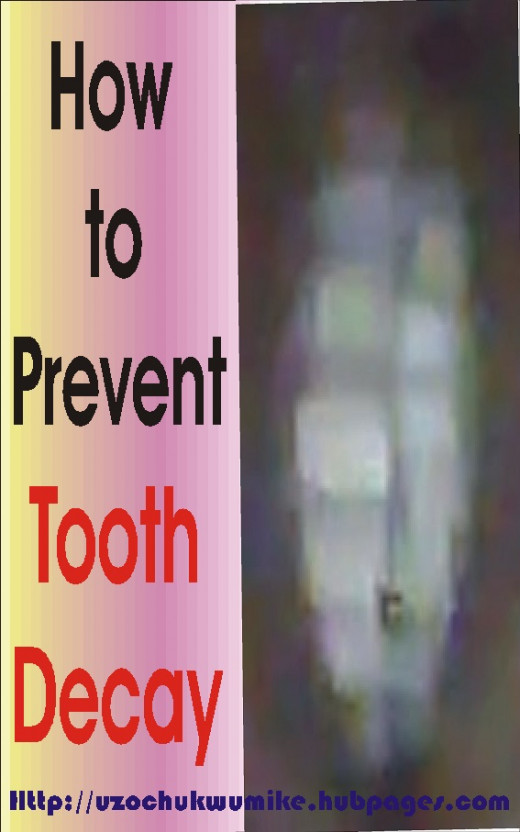 How to prevent tooth decay. Things to know on the prevention of tooth decay.