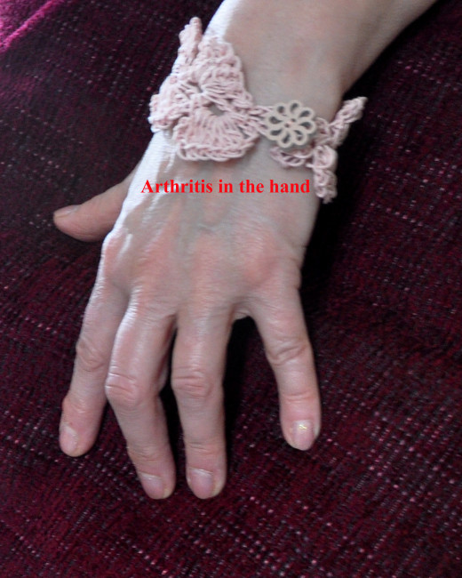 Inflammed and swollen joints in the hand in arthritis