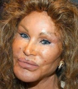 Plastic Surgery gone wrong