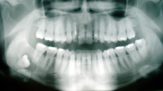 An impacted third molar resting at the wrong angle