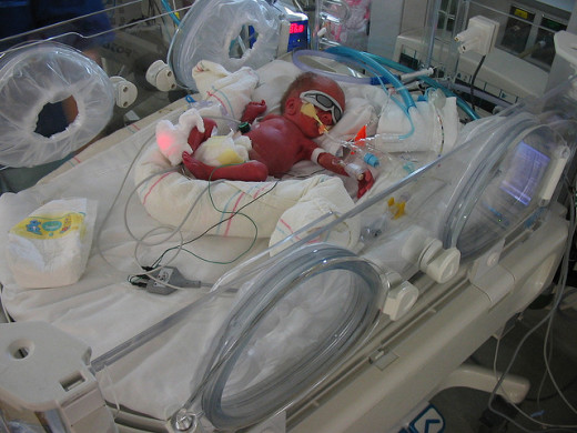 The earliest advocates of abortion stated that a baby was not viable outside of their mother's womb until at least 28 weeks gestation. Thanks to advances in neonatal care, premature babies born earlier than that can survive and thrive.