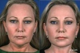 Facial Workouts