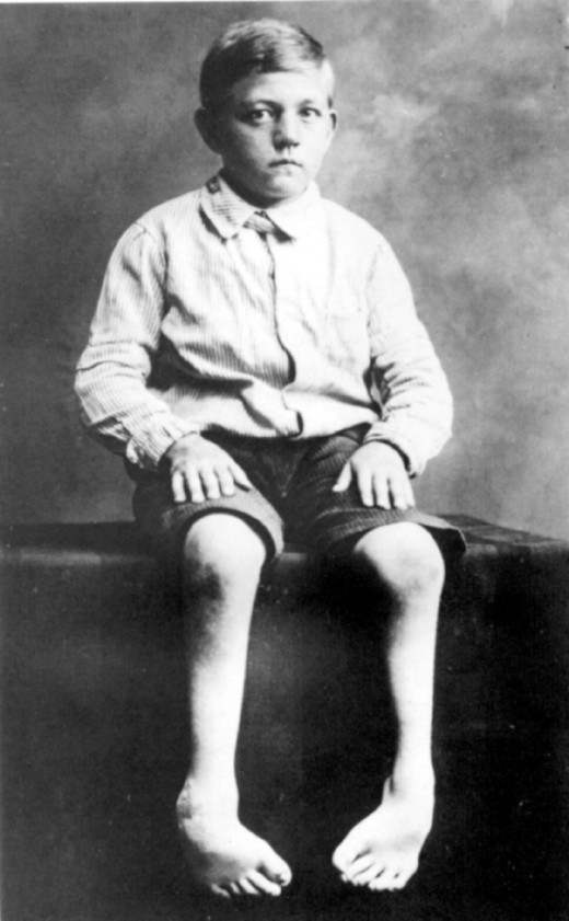 A young boy with a mental illness who was persecuted by Hilter.