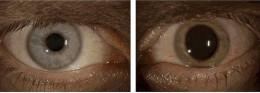 Ebola eye on right