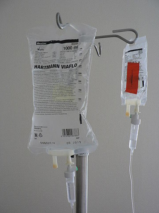 Quick intravenous glucose infusion can result in a sudden drop of blood phosphate levels and refeeding syndrome.