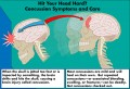 Hit Your Head Hard? Concussion Symptoms and Care