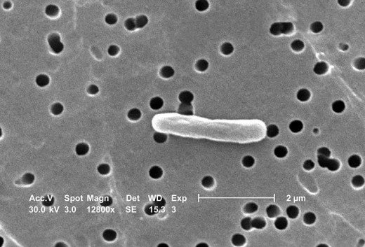 """""""Escherichia coli (SEM)"""" by CDC/Evangeline Sowers, Janice Carr - This media comes from the Centers for Disease Control and Prevention's Public Health Image Library"""
