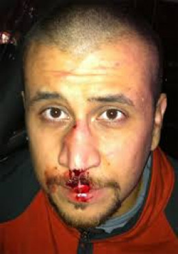 OUCH!  Trayvon swung a few times we see.?